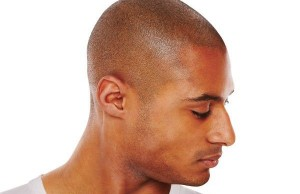 effective-hair-loss-solutions-for-men
