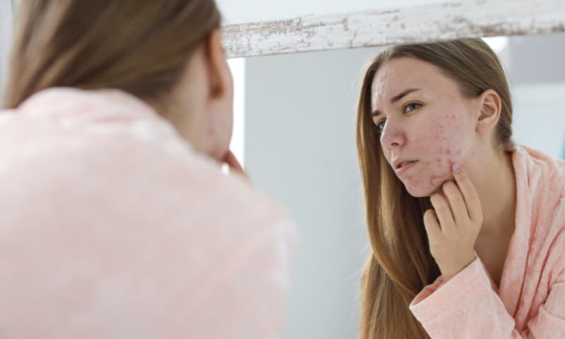 acne alert